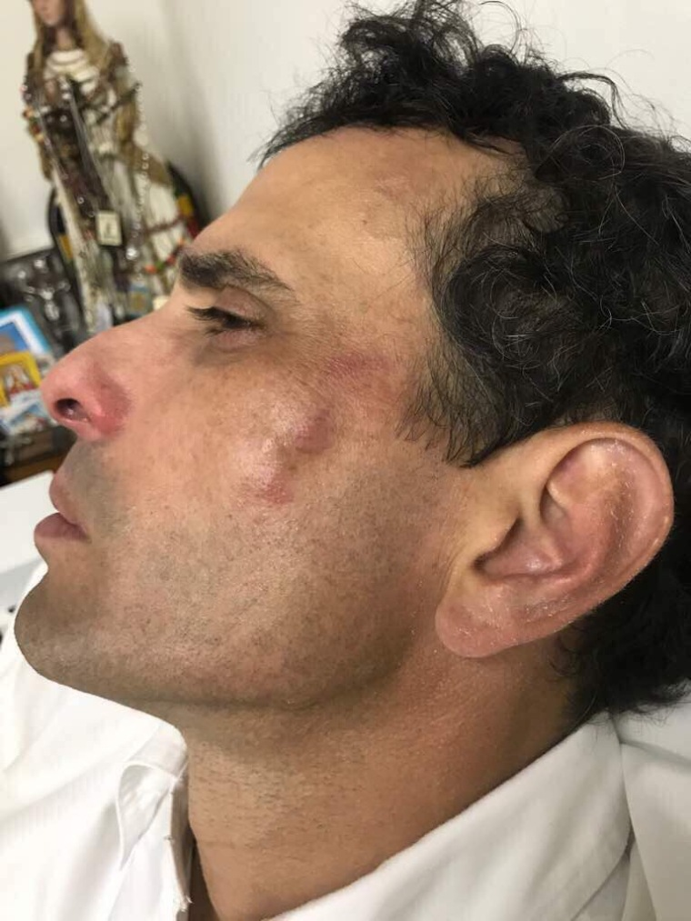 Capriles golpeado Mayo29