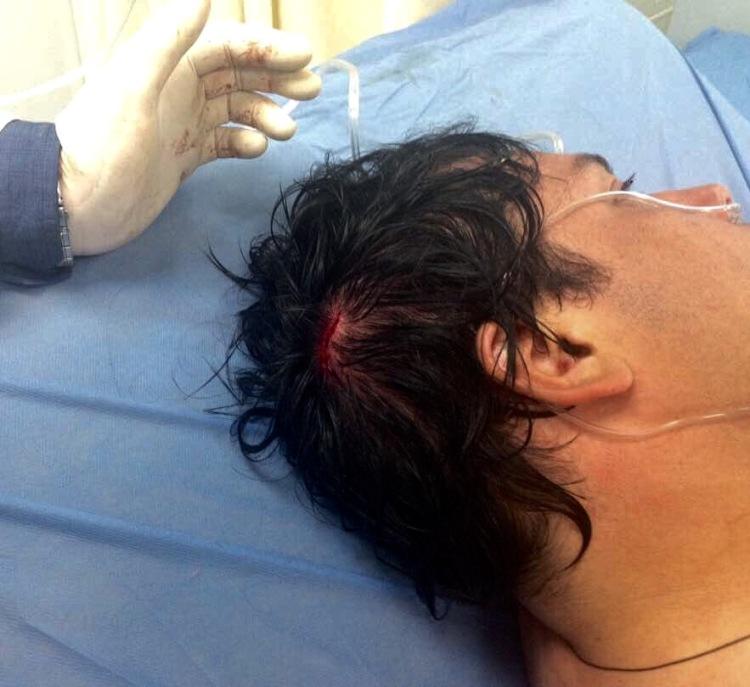 Paparoni Herido cabeza Mayo 29